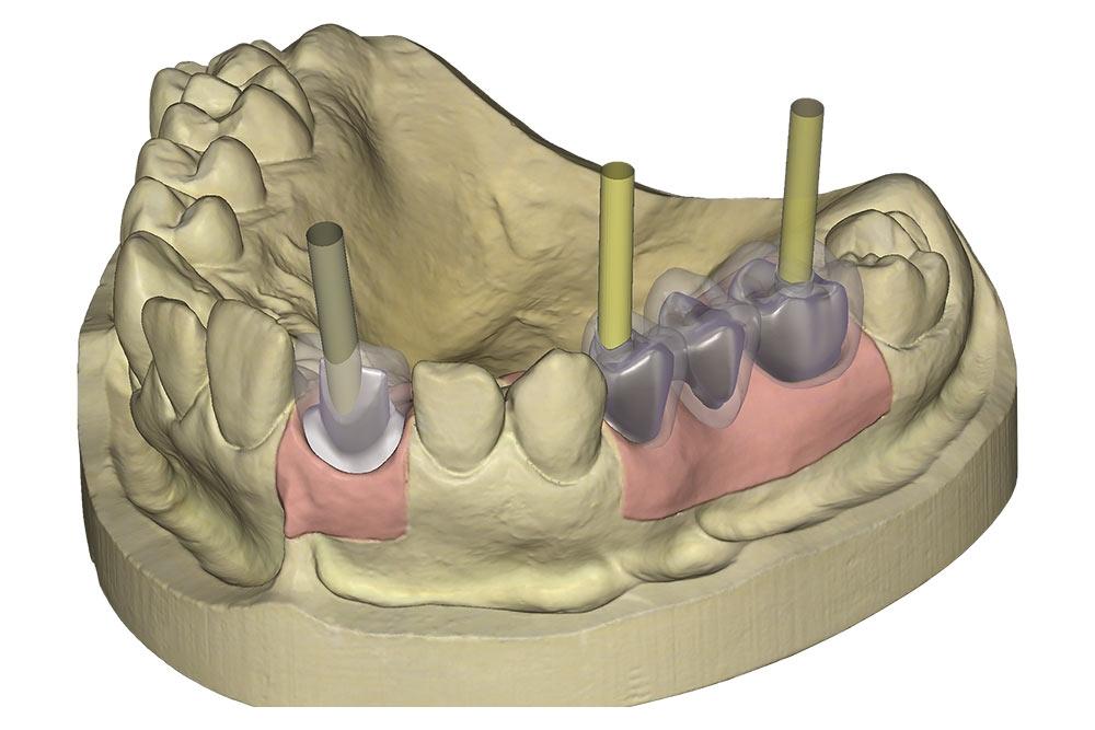 implant-module